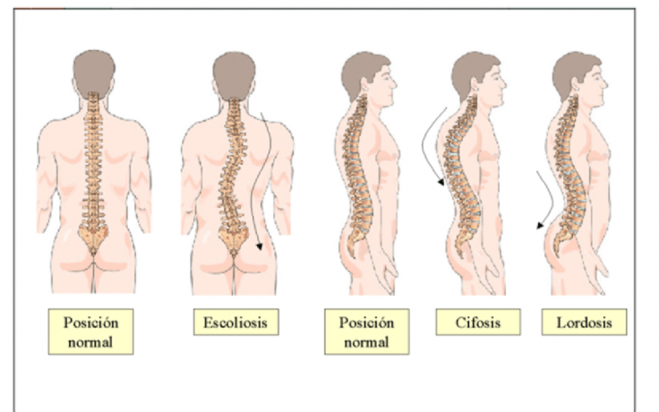 Patologías Espalda